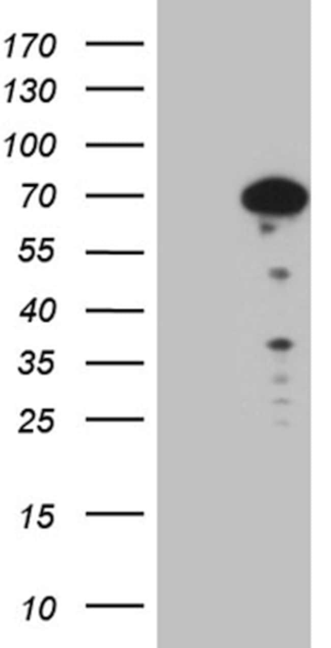 SF1 Antibody in Western Blot (WB)