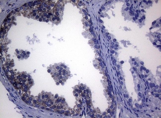 SHMT2 Antibody in Immunohistochemistry (Paraffin) (IHC (P))