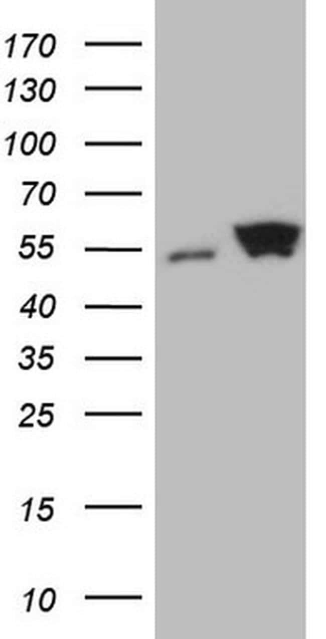 SHMT2 Antibody in Western Blot (WB)