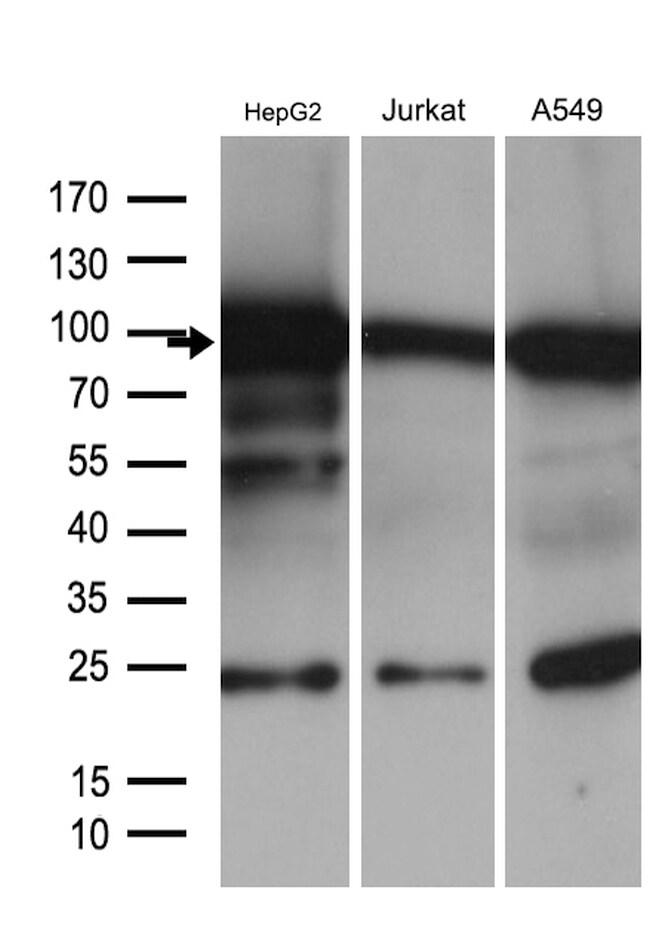 SIRT1 Antibody in Western Blot (WB)