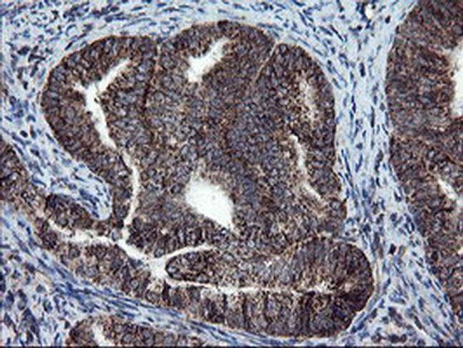 SKIL Antibody in Immunohistochemistry (Paraffin) (IHC (P))