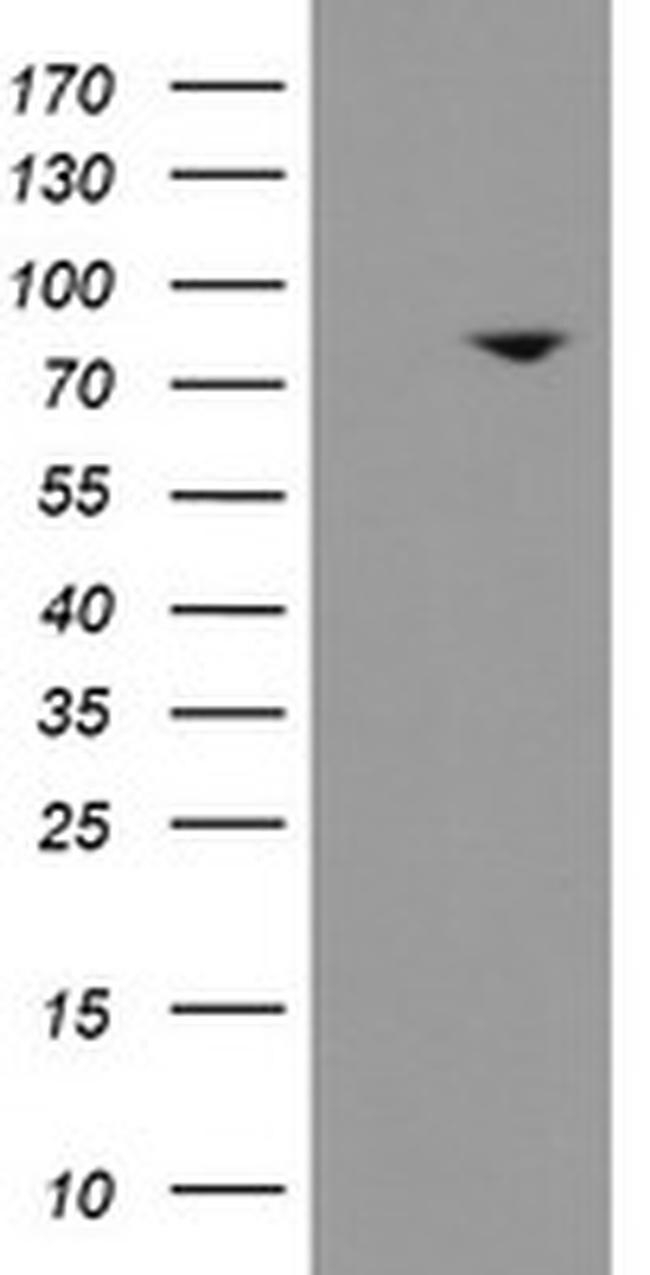 SKIL Antibody in Western Blot (WB)