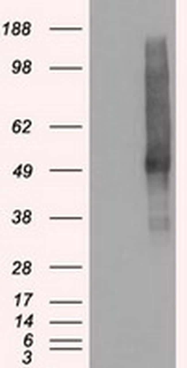 SLC18A2 Antibody in Western Blot (WB)