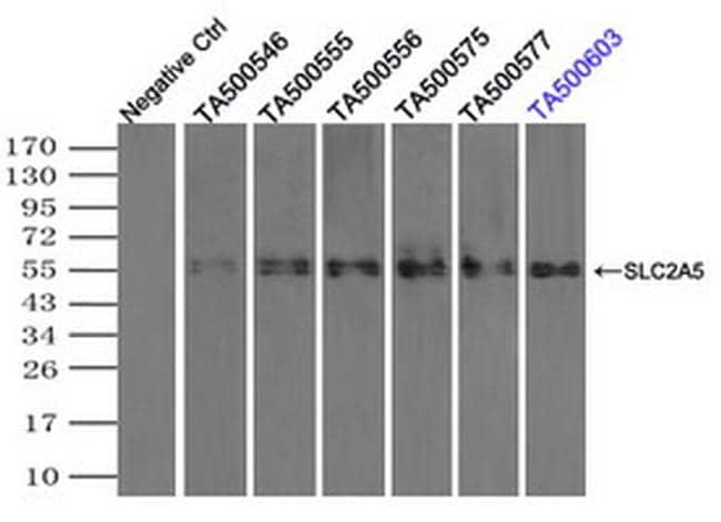 SLC2A5 Antibody in Immunoprecipitation (IP)