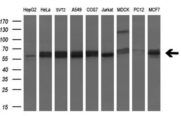 SLC2A6 Antibody in Western Blot (WB)