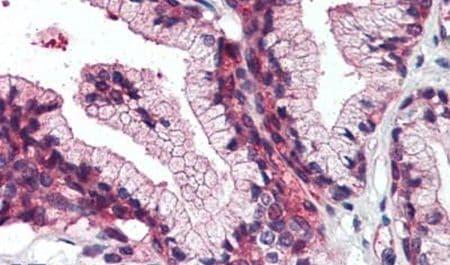 ZIP14 Antibody in Immunohistochemistry (Paraffin) (IHC (P))