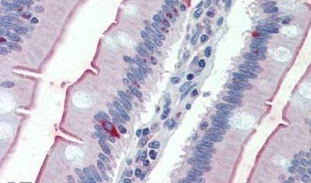 SGLT1 Antibody in Immunohistochemistry (Paraffin) (IHC (P))