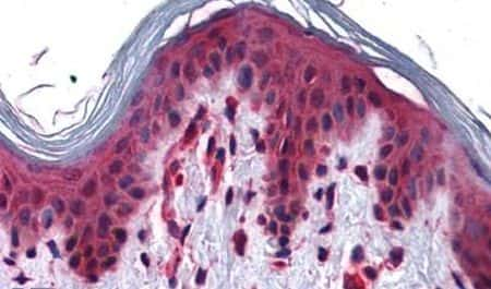 SLC5A6 Antibody in Immunohistochemistry (Paraffin) (IHC (P))