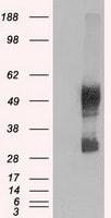 SLC7A8 Antibody in Western Blot (WB)