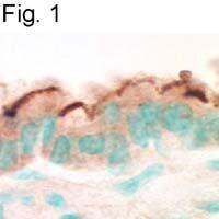 EBP50 Antibody in Immunohistochemistry (IHC)