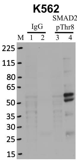 Phospho-SMAD2 (Thr8) Antibody in Immunoprecipitation (IP)