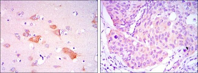 SMAD5 Antibody in Immunohistochemistry (IHC)