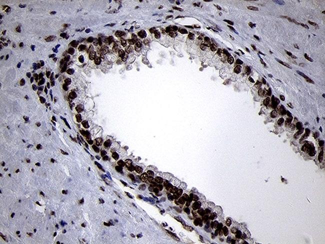 SMC1A Antibody in Immunohistochemistry (Paraffin) (IHC (P))
