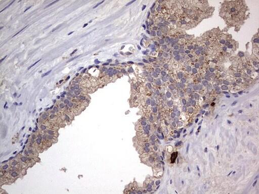 SMPD1 Antibody in Immunohistochemistry (Paraffin) (IHC (P))