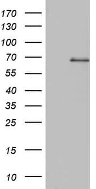 SMPD1 Antibody in Western Blot (WB)
