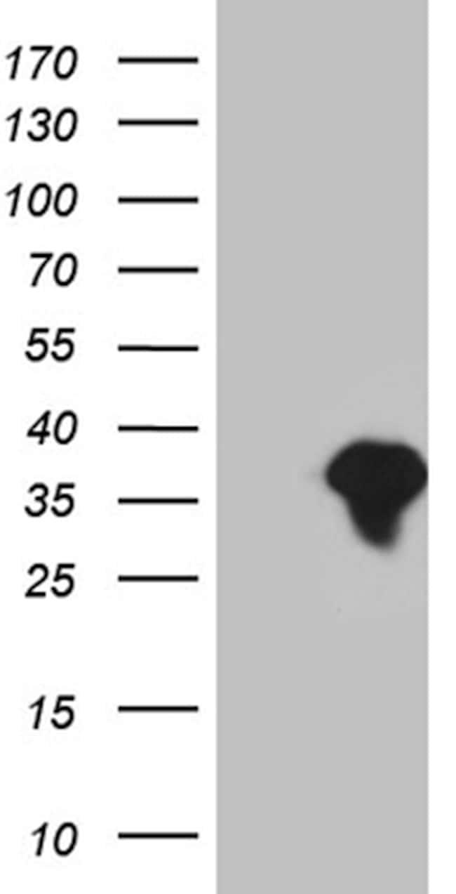 SMUG1 Antibody in Western Blot (WB)