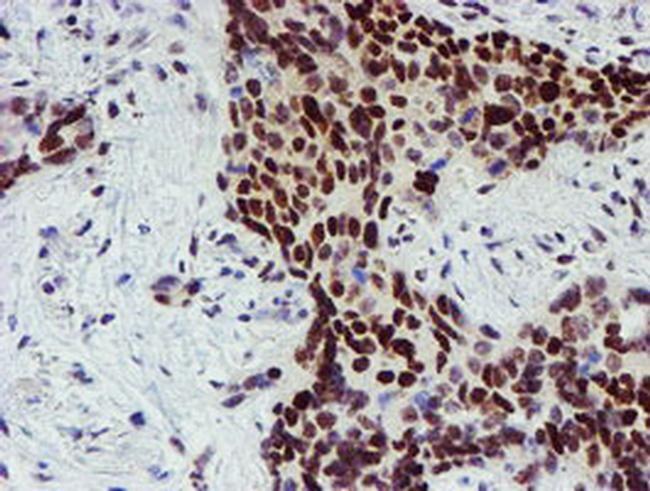SNAI2 Antibody in Immunohistochemistry (Paraffin) (IHC (P))