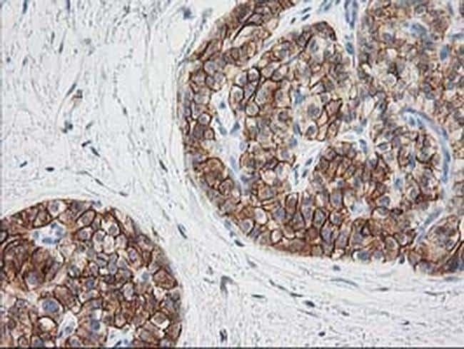 SNAP25 Antibody in Immunohistochemistry (Paraffin) (IHC (P))