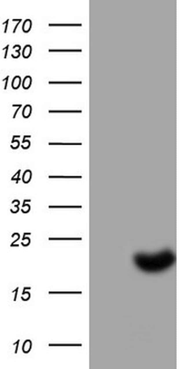 SNX12 Antibody in Western Blot (WB)
