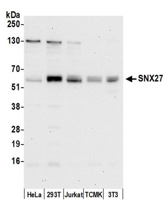SNX27 Antibody in Western Blot (WB)