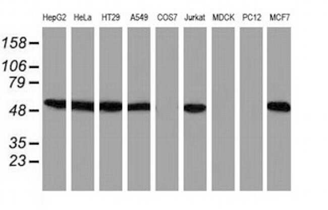 SNX8 Antibody in Western Blot (WB)