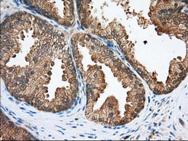 SNX9 Antibody in Immunohistochemistry (Paraffin) (IHC (P))
