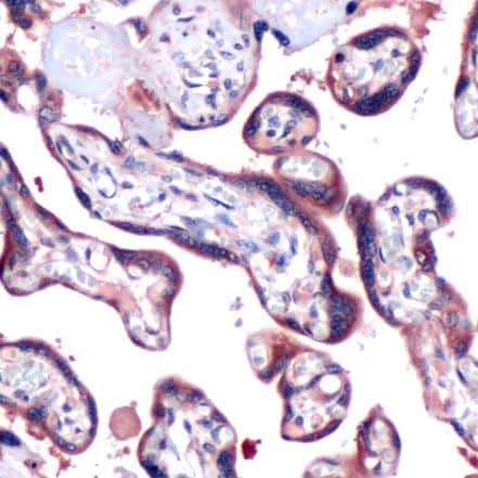 SOCS3 Antibody in Immunohistochemistry (IHC)