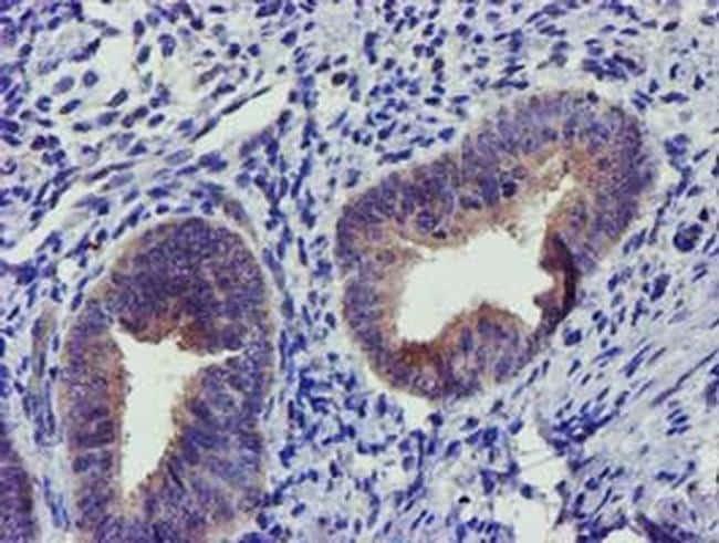 SOCS3 Antibody in Immunohistochemistry (Paraffin) (IHC (P))