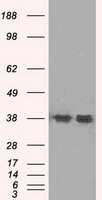 SORD Antibody in Western Blot (WB)