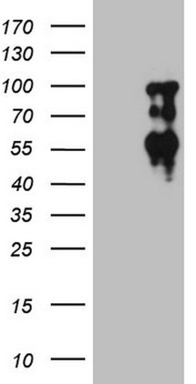 SOX6 Antibody in Western Blot (WB)