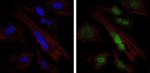 SOX9 Antibody in Immunofluorescence (IF)