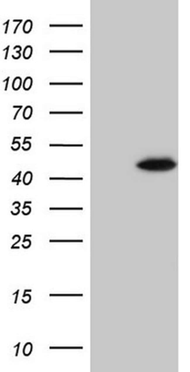 SPATA22 Antibody in Western Blot (WB)