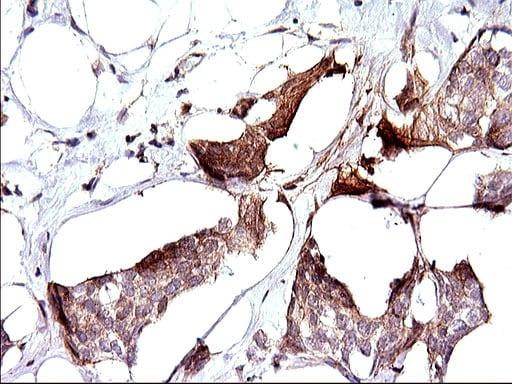 SPHK1 Antibody in Immunohistochemistry (Paraffin) (IHC (P))