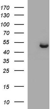 SPHK1 Antibody in Western Blot (WB)