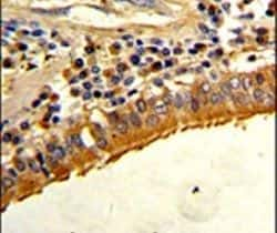 Osteopontin Antibody in Immunohistochemistry (IHC)