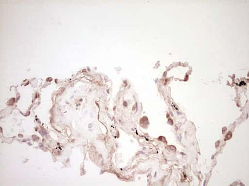 SPP1 Antibody in Immunohistochemistry (Paraffin) (IHC (P))