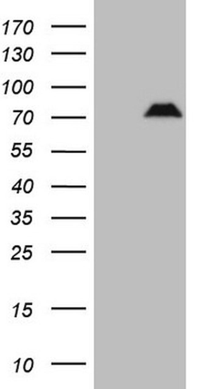 SPP1 Antibody in Western Blot (WB)