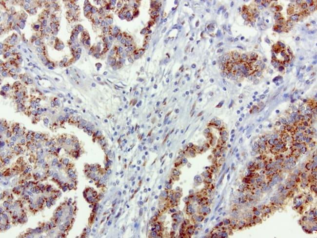 SQSTM1 Antibody in Immunohistochemistry (Paraffin) (IHC (P))