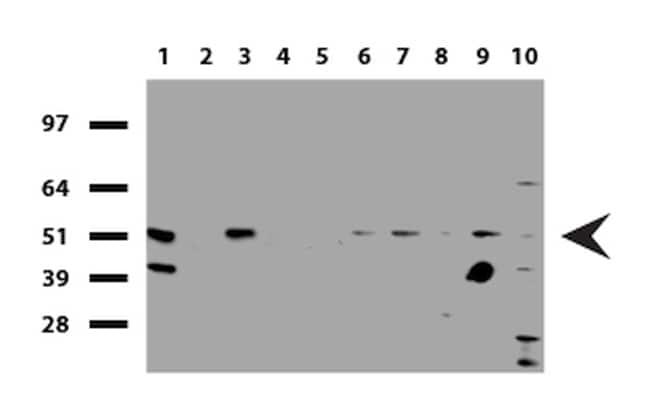 SQSTM1 Antibody in Western Blot (WB)
