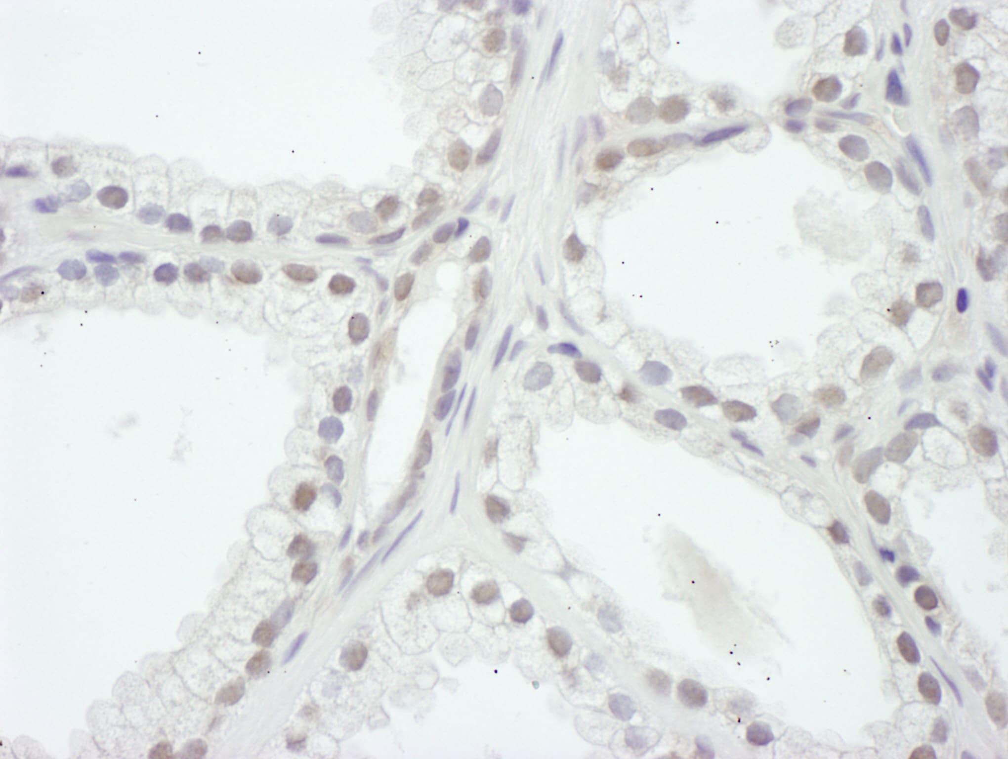 SRC1 Antibody in Immunohistochemistry (IHC)