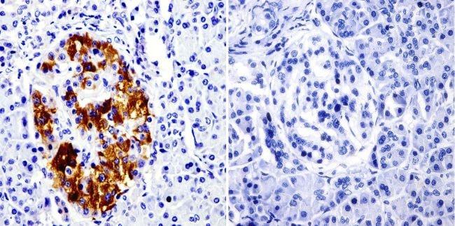 SRC3 Antibody in Immunohistochemistry (IHC)