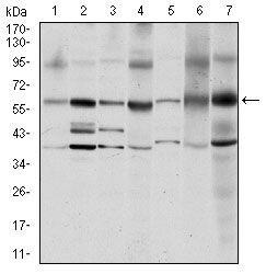 SRC Antibody in Western Blot (WB)