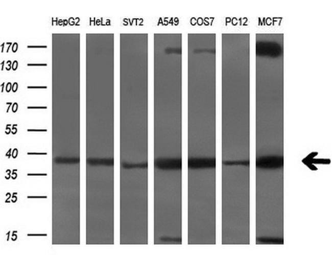 SRR Antibody in Western Blot (WB)