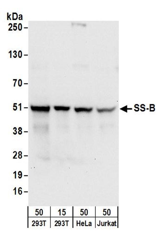 SS-B Antibody in Western Blot (WB)
