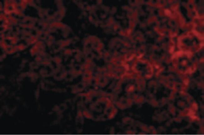 ST2 Antibody in Immunofluorescence (IF)