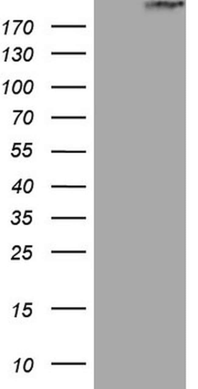 STAB2 Antibody in Western Blot (WB)