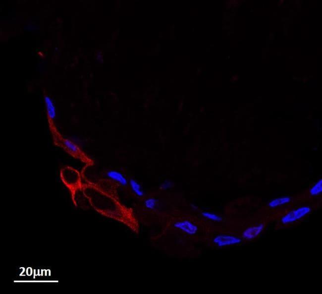 STAT3 Antibody in Immunofluorescence (IF)