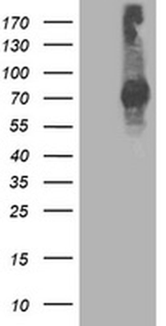 STAT4 Antibody in Western Blot (WB)