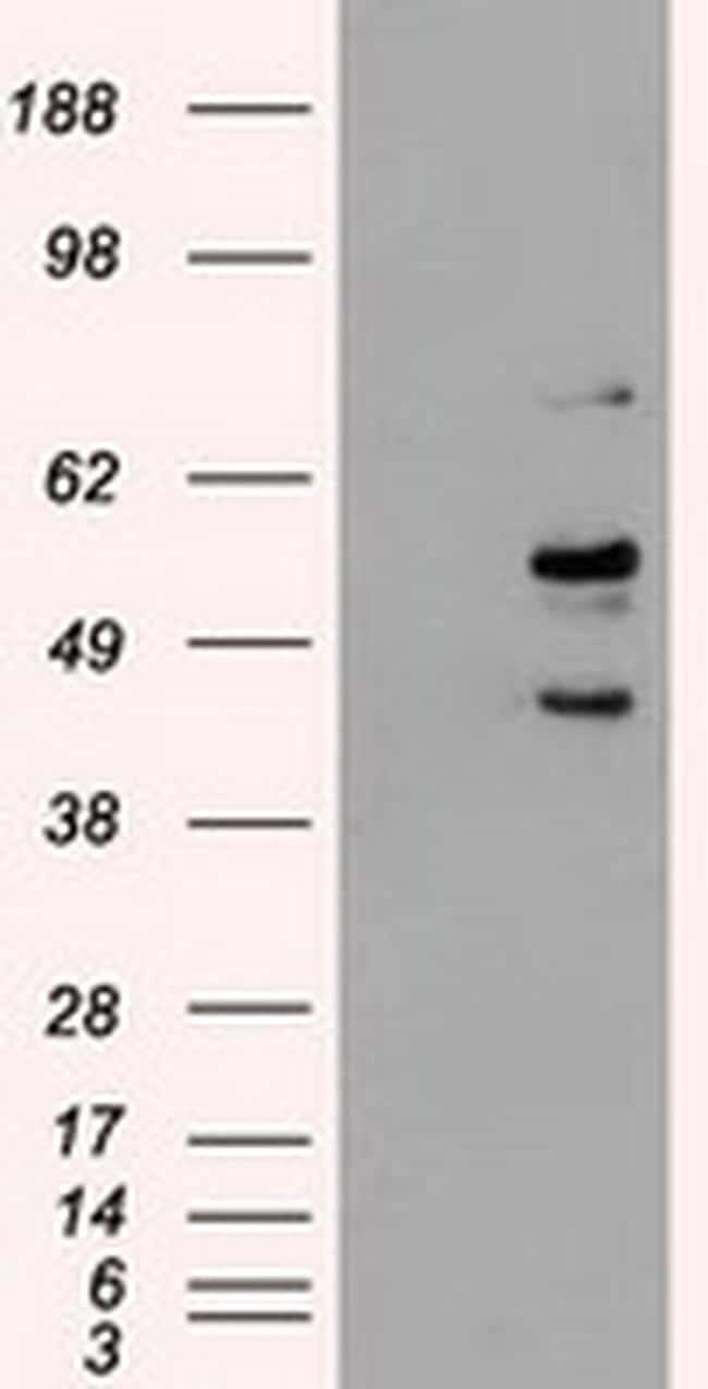 STK3 Antibody in Western Blot (WB)
