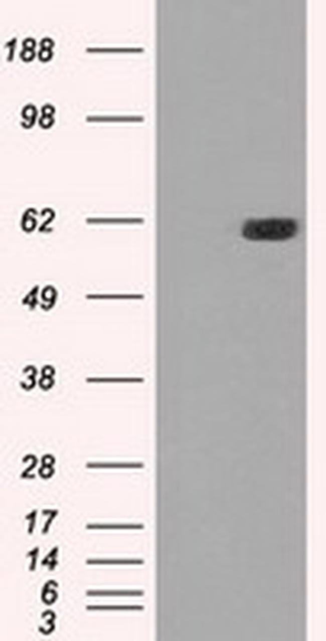 STK39 Antibody in Western Blot (WB)